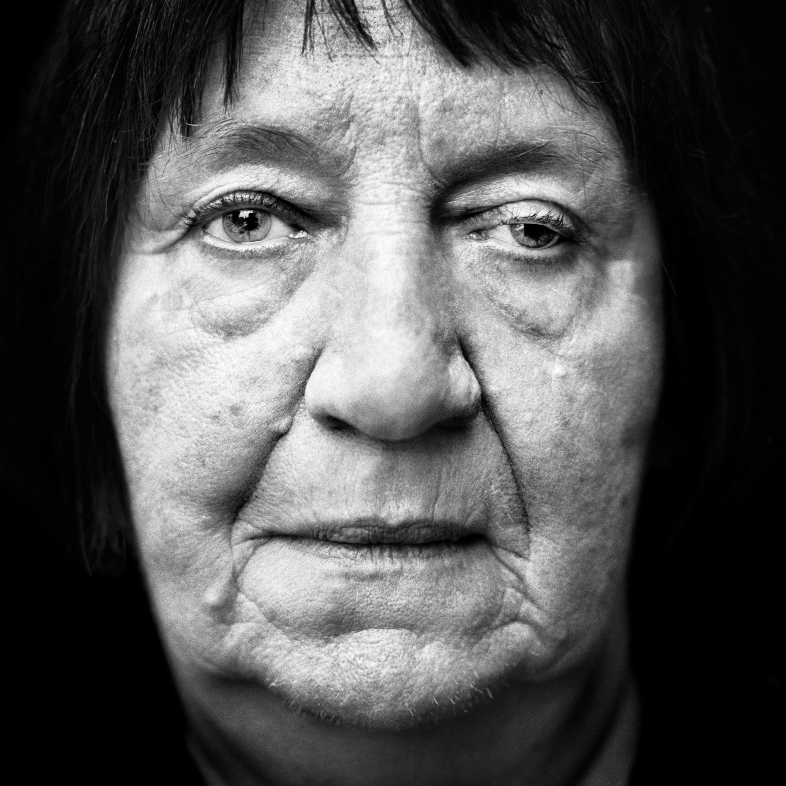 """Helene Boppert (Germany, 1938). Interview outtake: """"The Americans dropped incendiary bombs on our street. Sixty-five people were killed. My father was killed, and both my brothers were killed. I was unconscious when slave laborers rescued me from our burning house. Both my legs were broken, and I could hardly see a thing."""""""